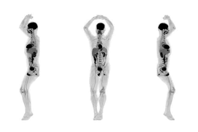 Ce sont deux scientifiques américains, Simon Cherry et Ramsey Badawi, qui sont à l'origine de ce scanner 3D, baptisé Explorer. Celui-ci est décrit par l'université de Californie comme « le premier scanner d'imagerie médicale au monde qui peut capturer une image 3D de tout le corps humain en une fois ». Ce scanner est le […]