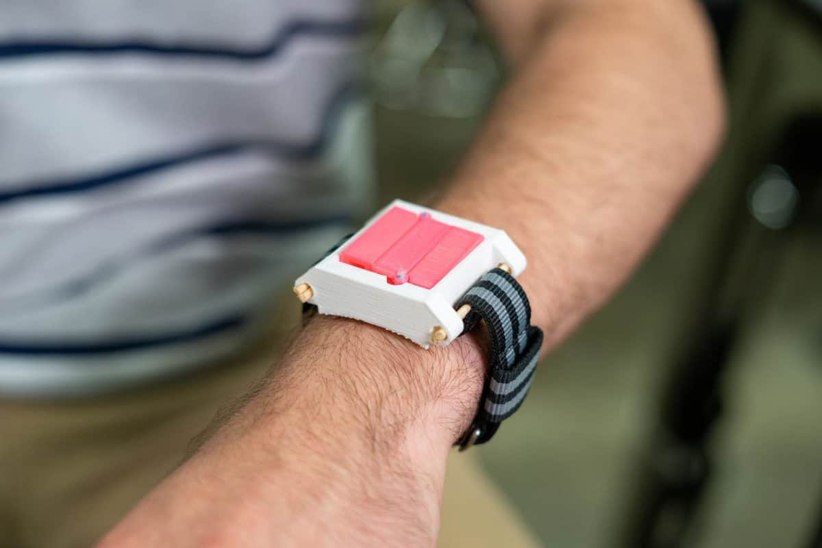 """EpiWear, la """"montre"""" qui peut sauver la vie des allergiques"""